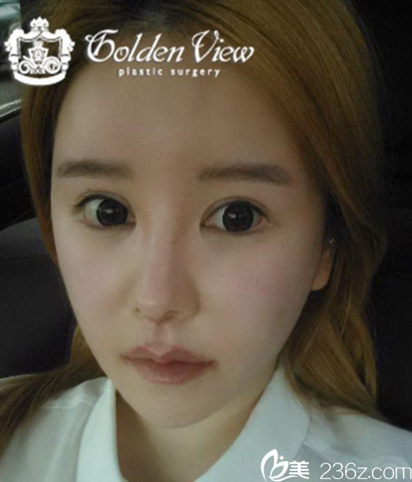 分享我在韩国金薇整形外科找宋尚勋院长做的嘴角上扬+专利人中缩小+真皮移植案例