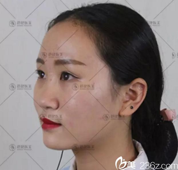 宁波芭比医疗美容医院李雄艳术前照片1