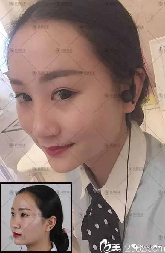 宁波芭比医疗美容医院李雄艳术后照片1