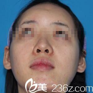 韩国眼鼻美人整形外科崔钟武术前照片1