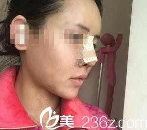 崔钟武院长膨体隆鼻刚做完手术当天