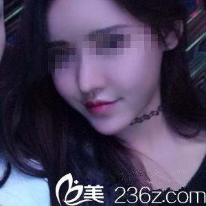 韩国眼鼻美人整形外科崔钟武术后照片1