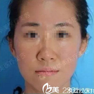 在梧州华美花1780元做了激光祛痘后 拥有了光滑美肌