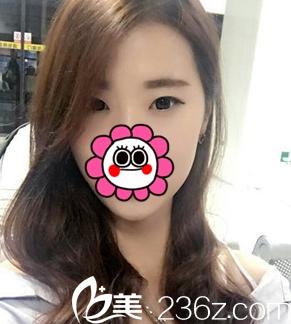 重庆艺星整形美容医院段春巍术前照片1