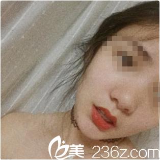 沈阳椤迪特医疗美容曹永茂术前照片1