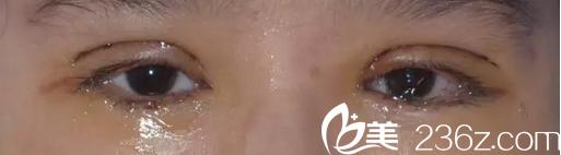 切开双眼皮+下睑内翻倒睫术后2天效果