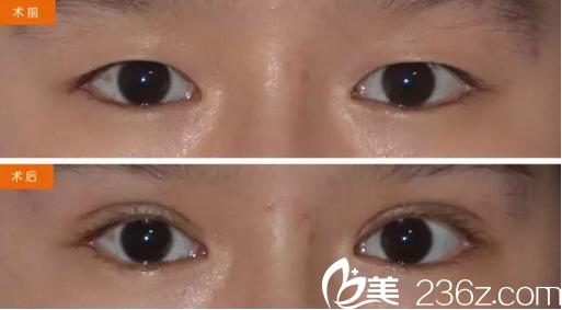 蒋中川切开双眼皮+下睑内翻倒睫术后对比照
