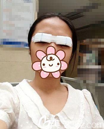 在长春西之米整形医院做双眼皮手术后2天.jpg
