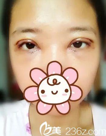 在长春西之米整形医院做双眼皮手术后4天.jpg