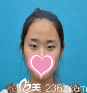 沈阳孟强医疗美容诊所孟强术前照片1
