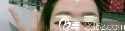 沈阳孟强医疗美容诊所真人切开双眼皮与开眼角术后当天