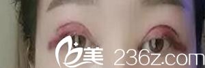 沈阳孟强医疗美容诊所真人切开双眼皮术后第二天
