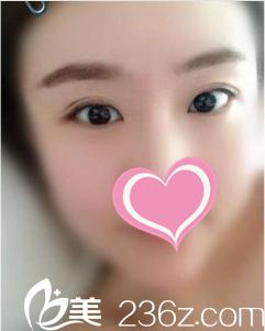 沈阳孟强医疗美容诊所真人双眼皮+开眼角术后半个月