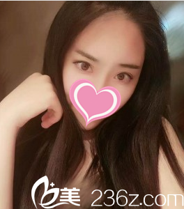 沈阳孟强医疗美容诊所孟强术后照片1