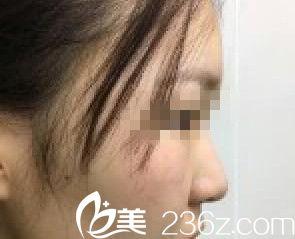 哈尔滨超龙医疗整形美容医院术前照片1