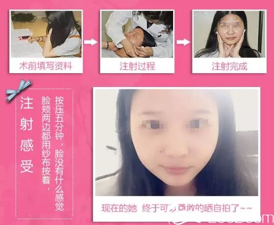 在苏州同济注射BOTOX瘦脸针改善大咬肌变身巴掌脸