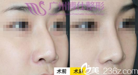 广州博仕张建军仿生理隆鼻案例对比图
