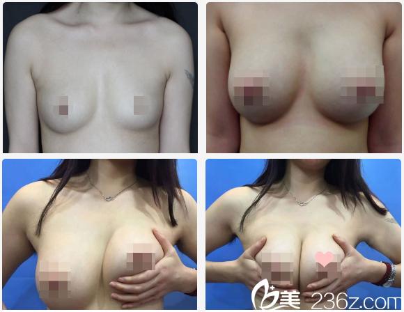 广州博仕张建军做的月亮隆胸案例