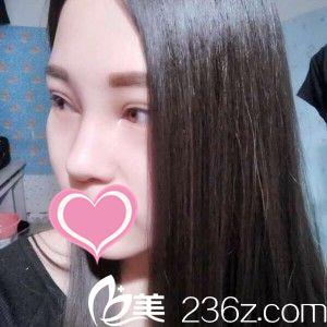 沈阳盛京尚美医疗美容门诊部王超给我做的鼻综合,让我气质脱俗!