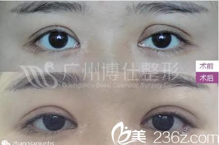 双眼皮失败3次,这次找广州博仕整形医院张建军终于修复成功了