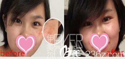 赵欣院长面部年轻化手术前后效果对比