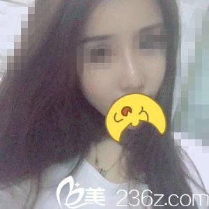 哈尔滨伊美尔黄志祥医生给我做的肋软骨隆鼻,让我重新拥有美丽自信