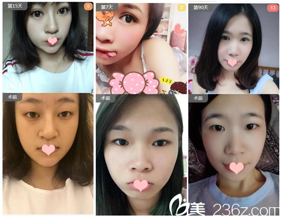 广州韩妃整形美容医院李光琴双眼皮案例组图
