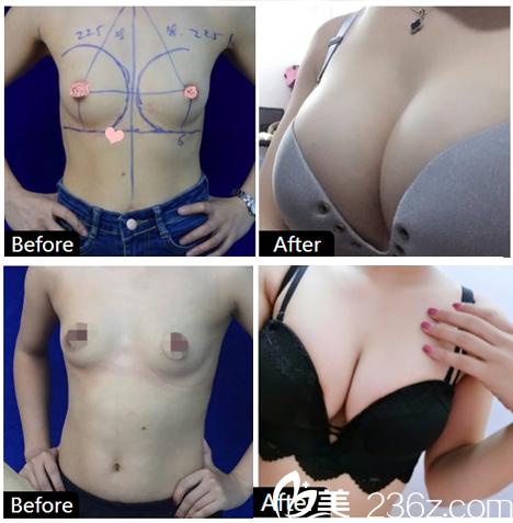 广州韩妃整形医院刘志刚隆胸案例对比图