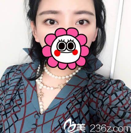 晒我在兰州嘉琳花3800元找田海峰做韩式无痕双眼皮一个月恢复效果图