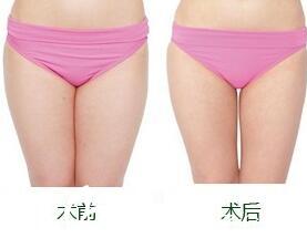 天津联合丽格第三医疗美容医院大腿吸脂案例