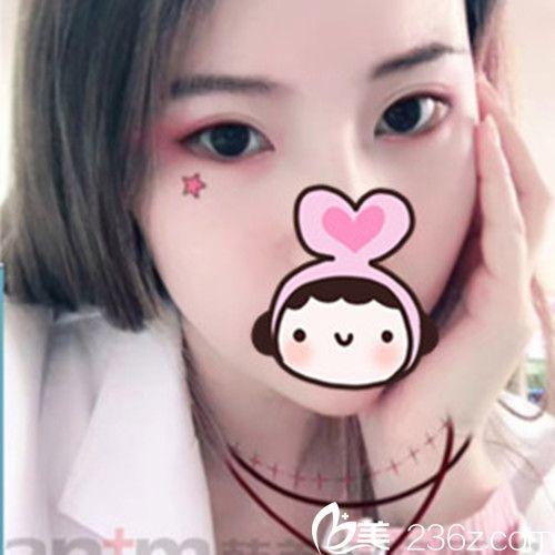 西宁小眼妹子在西宁韩美美容医院变大眼萌妹的心路历程