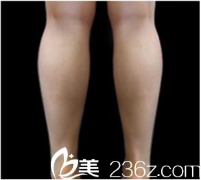 韩国JELIM医院李仁嬅给我瘦小腿的效果原来这么好,赞!