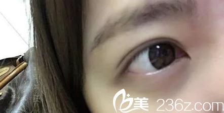 眼皮薄妹子在天津紫洁找王椿燕做了韩式三点双眼皮