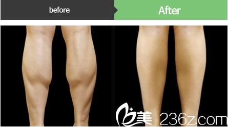 韩国JELIM整形医院李仁嬅院长做小腿肌肉退缩好不好?