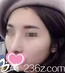 诉说我在天津知妍找薛云鹏做硅胶隆鼻历程