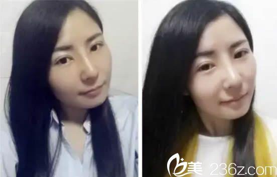 国庆节找漳州美博士倪少杰做鼻综合隆鼻后的感受和评价颇深