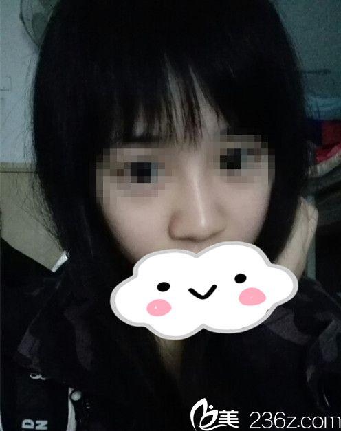 哈尔滨臻美徐航主任给我做的鼻翼缩小+假体隆鼻两个月的效果,美美哒