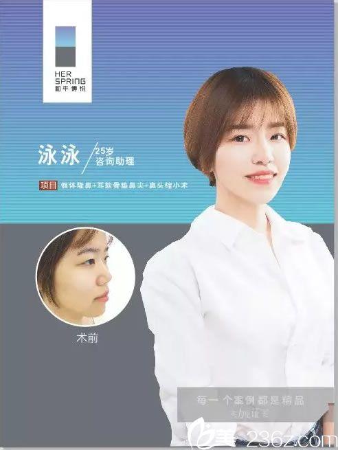 宁波和平博悦汪发生院长帮助25岁咨询助理做鼻综合手术成功摆脱塌肥宽形象