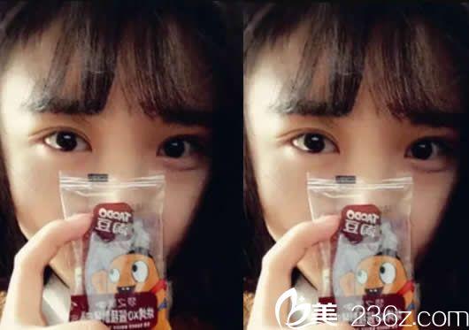 暑假找呼和浩特华美张晓刚做韩式无痕7mm双眼皮七天全消肿了