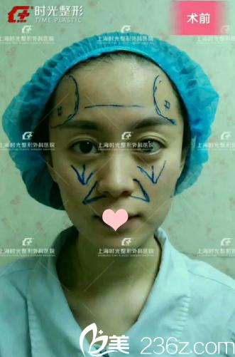上海脂肪填充谁做的好?上海时光许黎平让我从干瘪脸变成童颜美少女