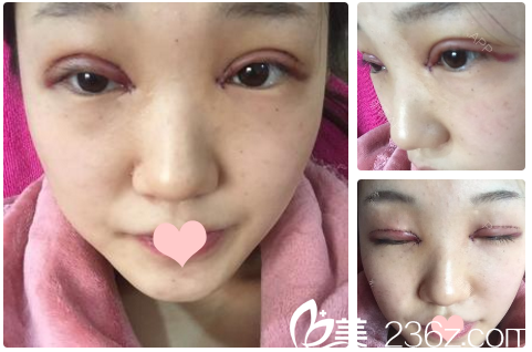 忍不住来分享我找北京八大处整形医院甘承医生做的6.5mm全切双眼皮
