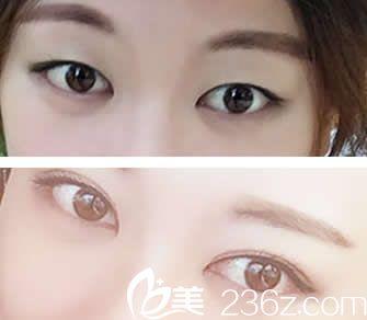单眼皮的我找兰州梦想张晓萍做韩式三点定位双眼皮后秒变大眼妹