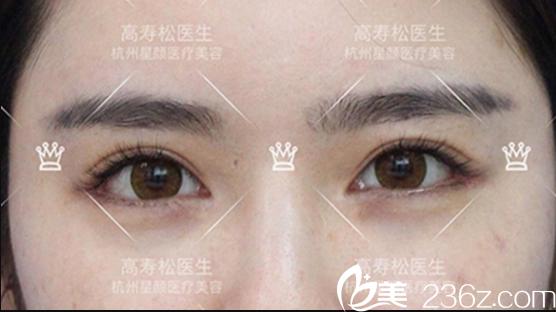 内双改为小平行双眼皮效果
