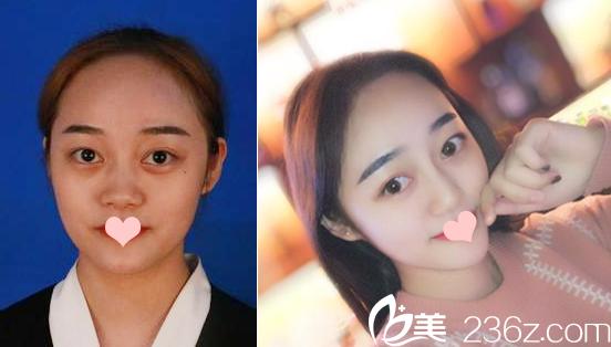 深圳鹏程医院吕一斌隆鼻案例对比图