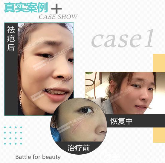 深圳鹏程医院疤痕科疤痕治疗案例
