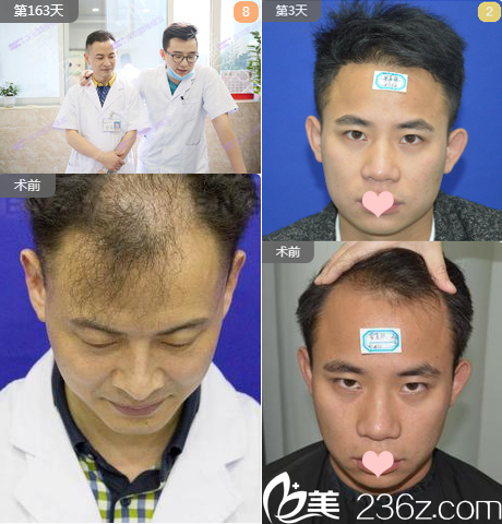 深圳鹏程贺伯晓发际线种植案例