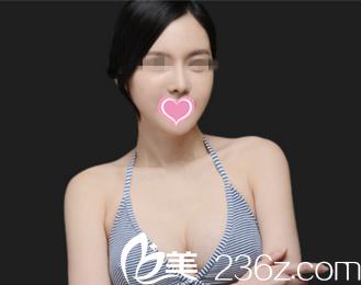 找韩国奥纳比整形外科张哲豪做的双颚+隆胸术竟带来这么大的变化