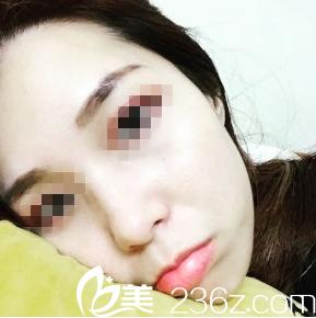 重庆爱思特祛斑后我颜值在线 一个激光解了千年遗传性雀斑的愁