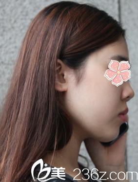 鼻子侧面很平