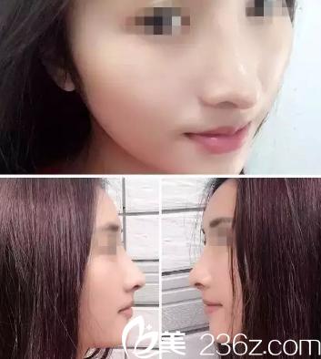 思来想去还是到沧州静港找季泽东做了达拉斯综合隆鼻 没想到效果如此惊人